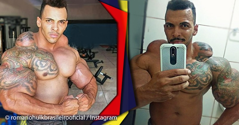 "Man got muscles with strange shapes after wanting to be a bodybuilder in the ""fast"" way"