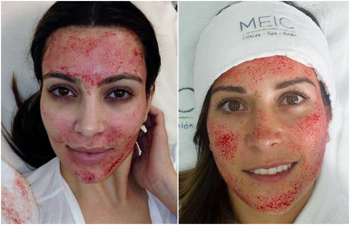 """Spa spreads HIV to women who became the """"facial Vampire"""""""